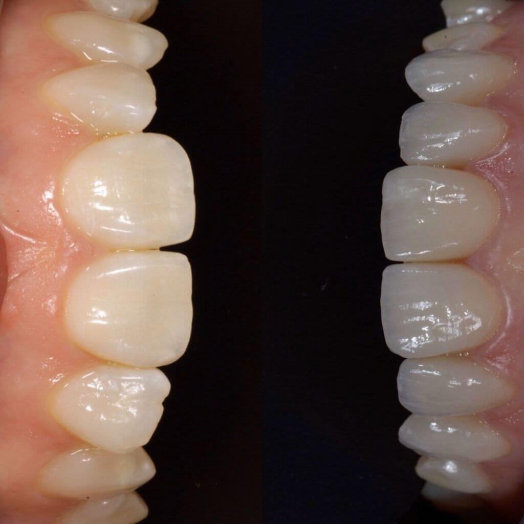 Faccette dentalI: caso studio