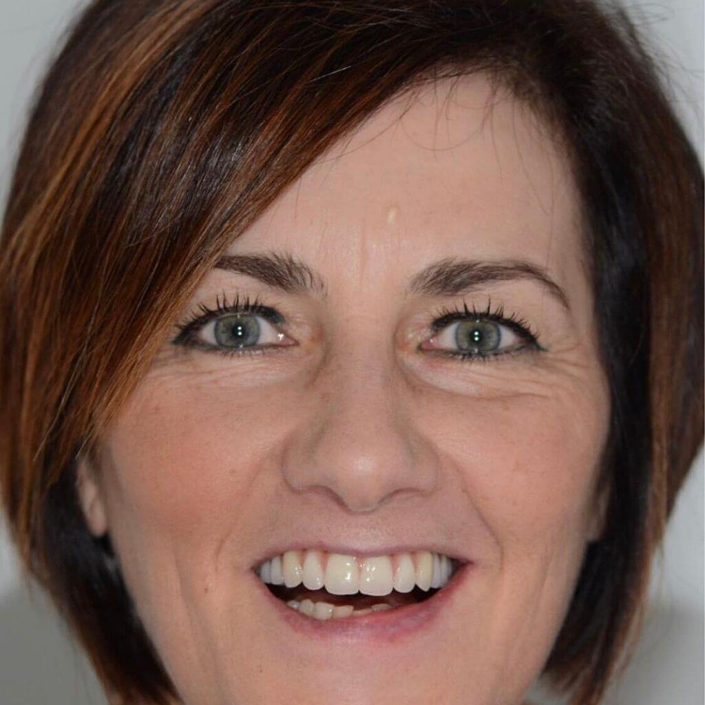Impianti dentali prima e dopo: riabilitazione del sorriso