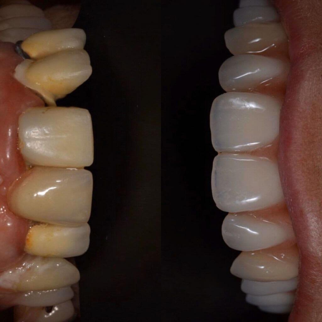 Impianti dentali prima e dopo: riabilitazione dentale completa
