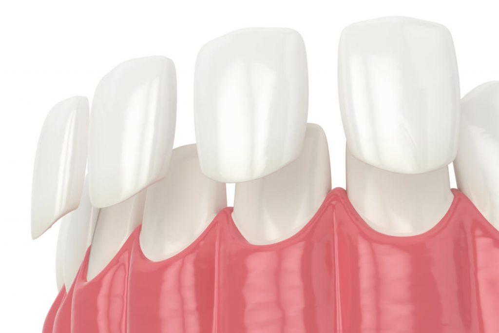 faccette-dentali-cosa-sono