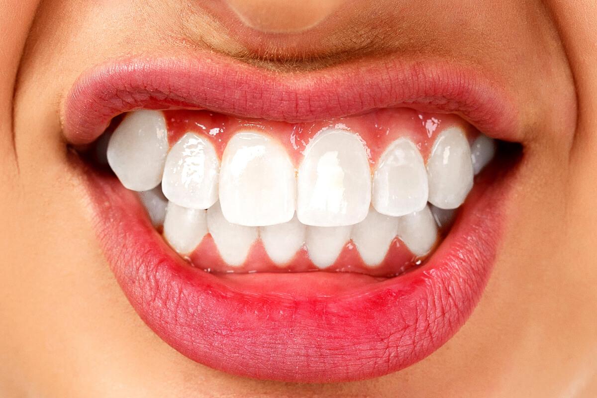 digrignare-i-denti