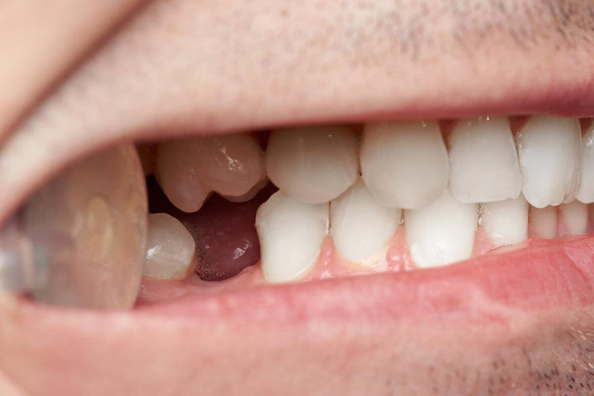 perdita-denti
