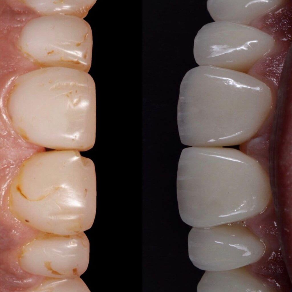 Faccette dentali in ceramica integrale