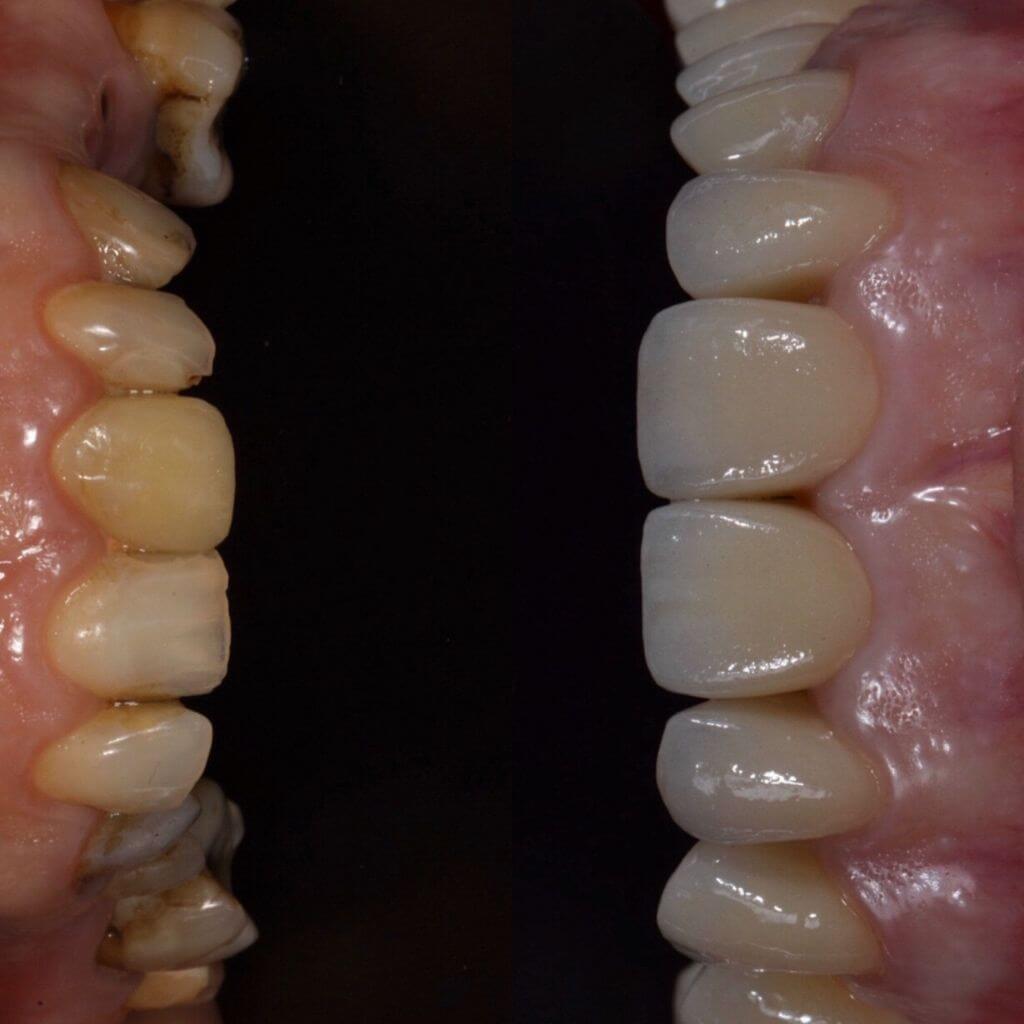Impianti dentali prima e dopo: corone in zirconio e ceramica, per riabilitazione delle selle edentule.