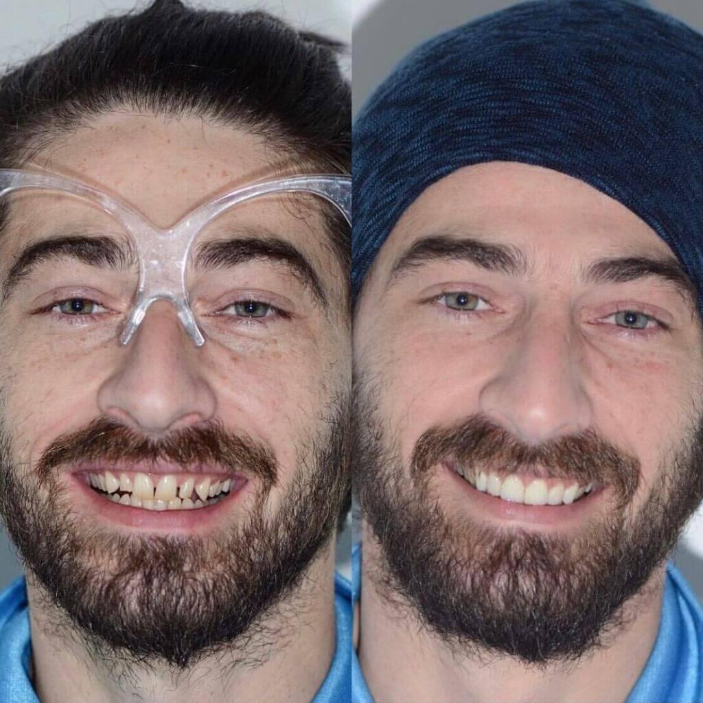 faccette dentali prima e dopo